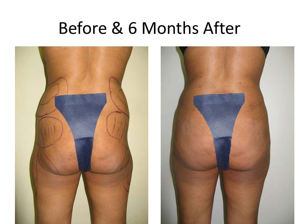 Liposuction Fat Transfer to Buttocks Before and After Photo 1