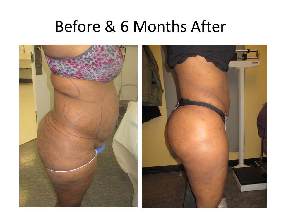 Fat Transfer to Buttock Liposuction Before and After Photo 10