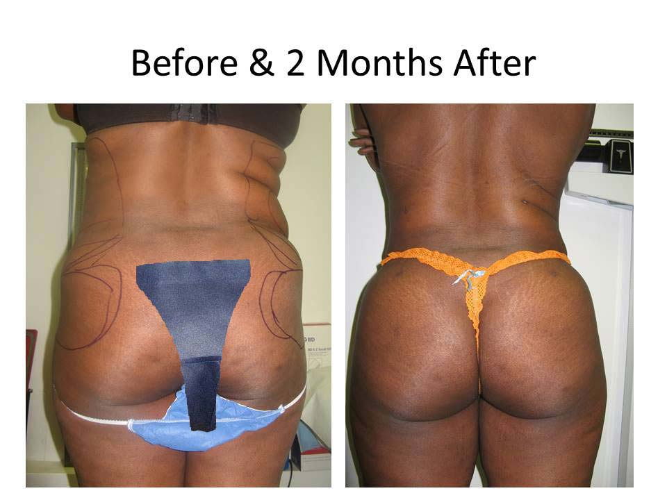Fat Transfer to Buttock Liposuction Before and After Photo 3