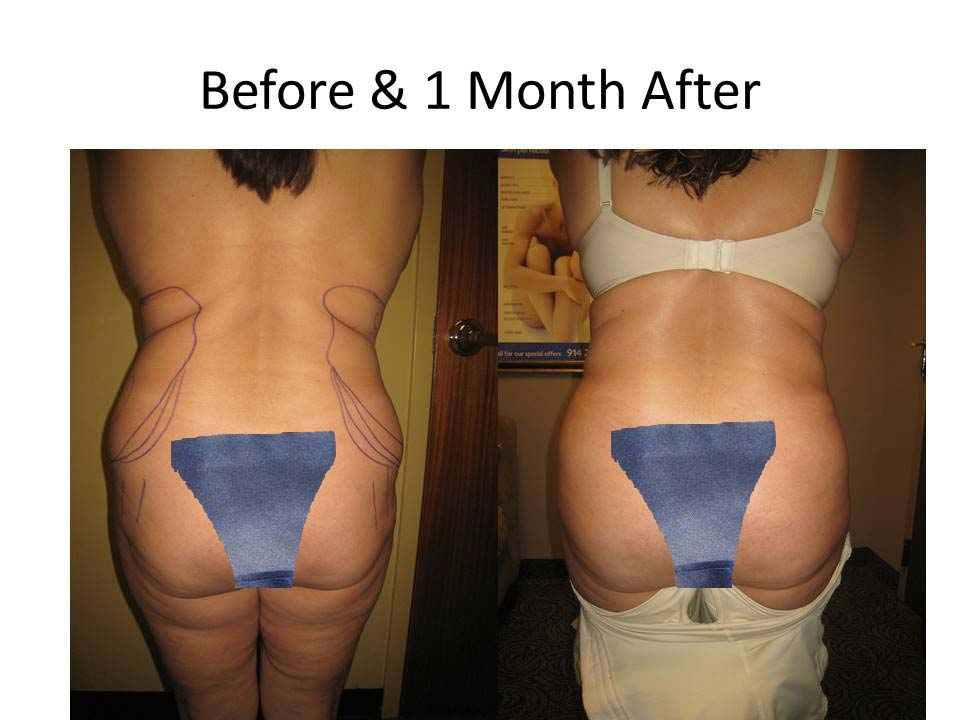 Fat Transfer to Buttock Liposuction Before and After Photo 6