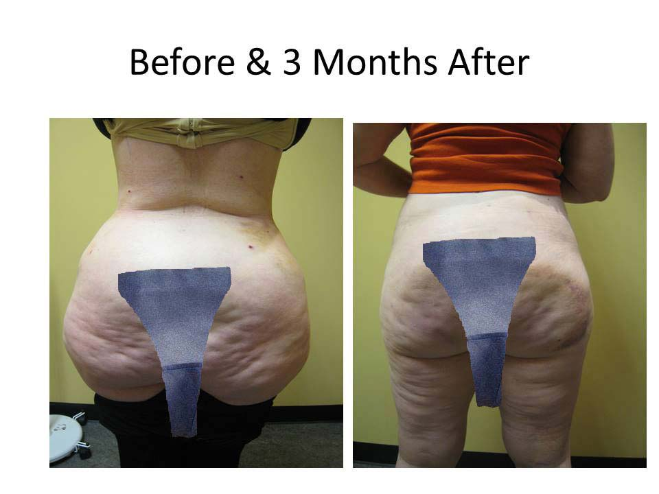 Fat Transfer to Buttock Liposuction Before and After Photo 8