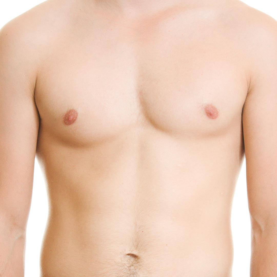 Liposuction for Male Breast Reduction