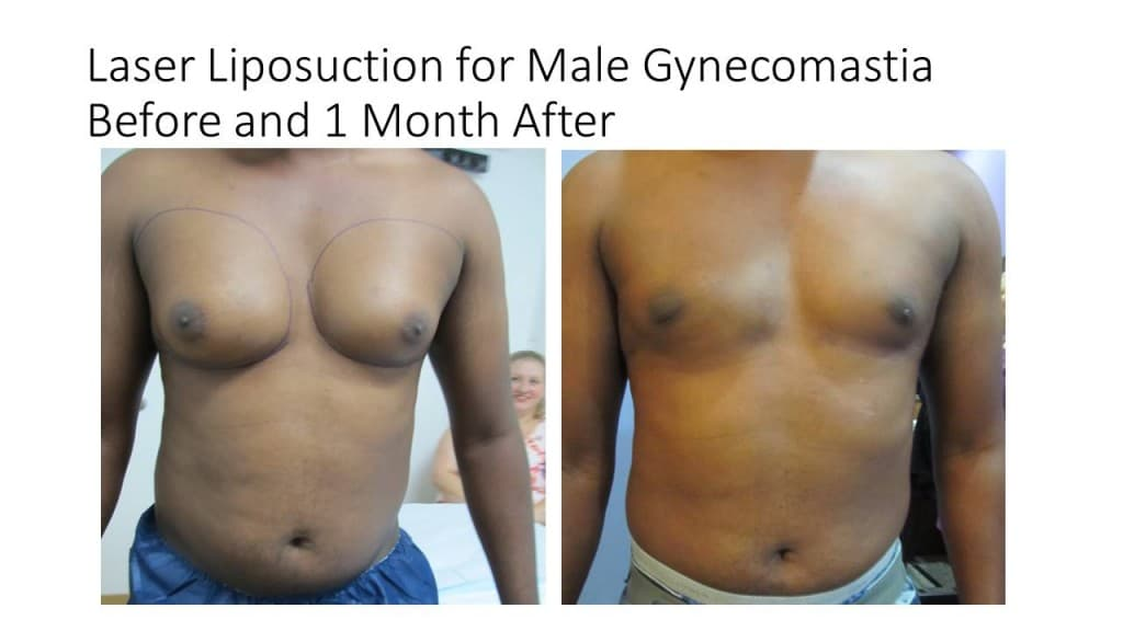 Male Breast Reduction Liposuction Before and After 1