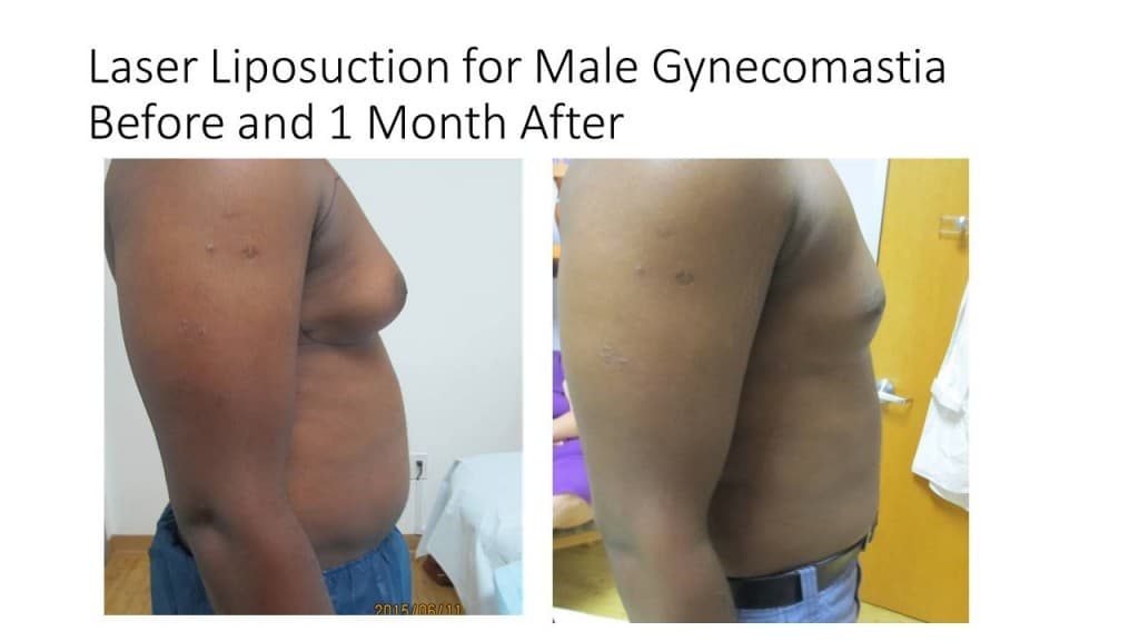 Male Breast Reduction Liposuction Before and After 2
