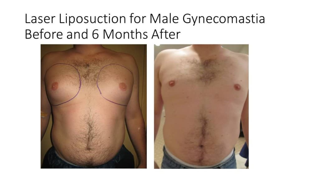 Male Breast Reduction Liposuction Before and After 3