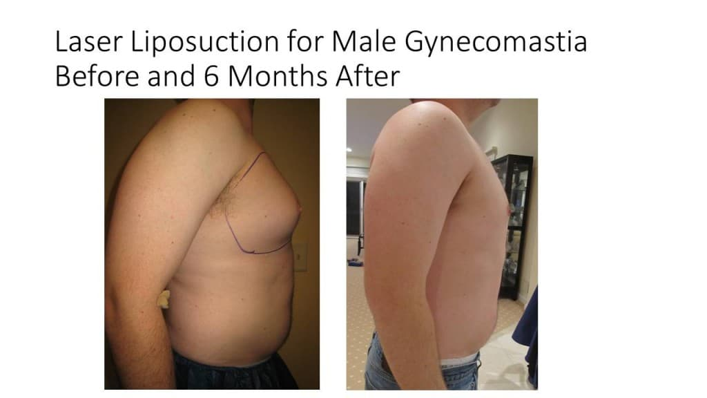 Male Breast Reduction Liposuction Before and After 4