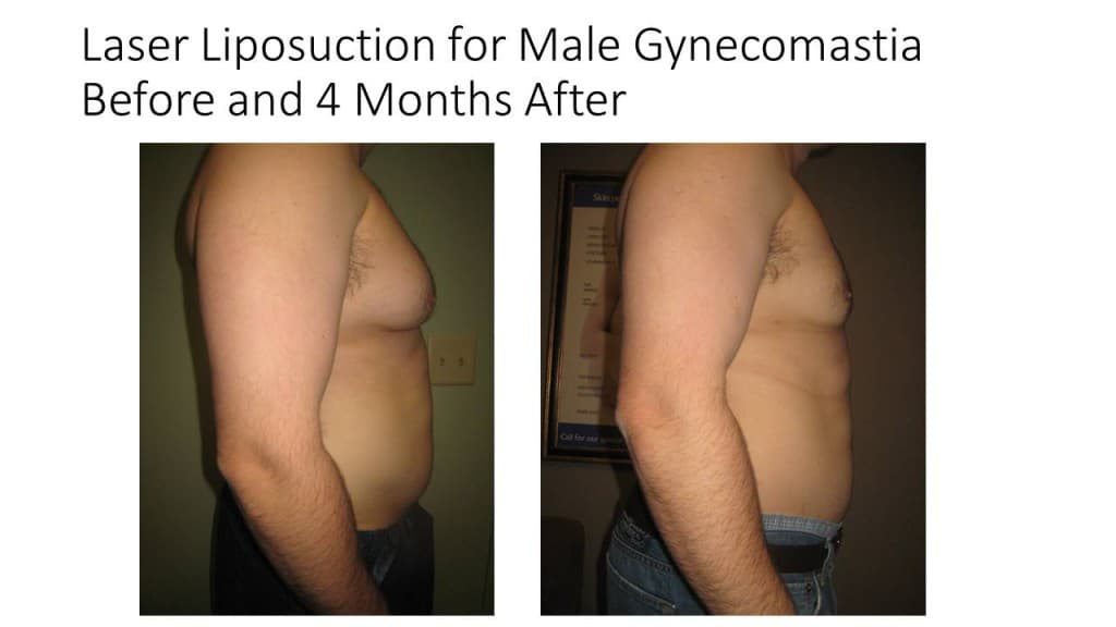 Male Breast Reduction Liposuction Before and After 5