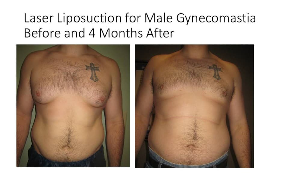Male Breast Reduction Liposuction Before and After 6