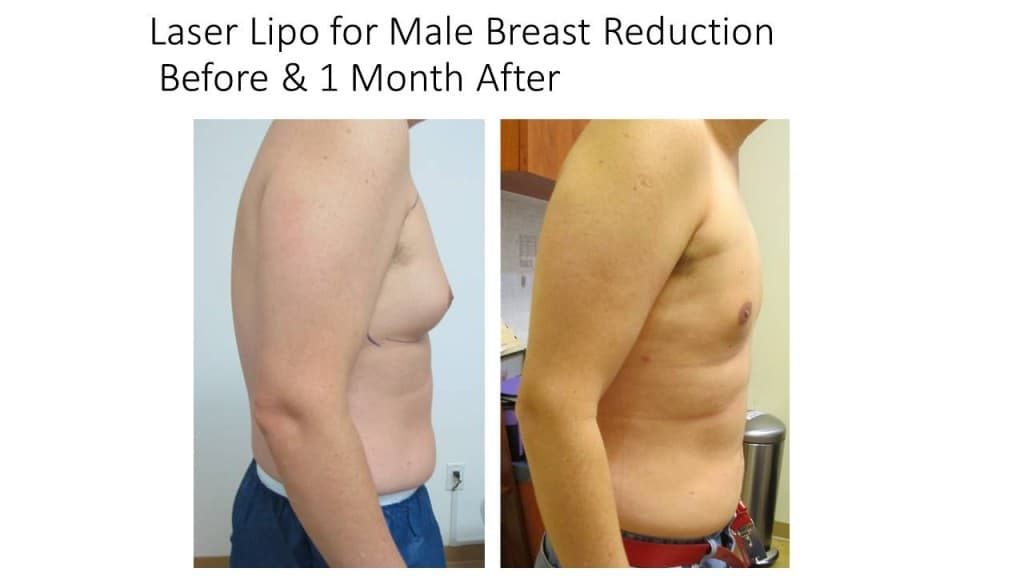 Male Breast Reduction Liposuction Before and After 8