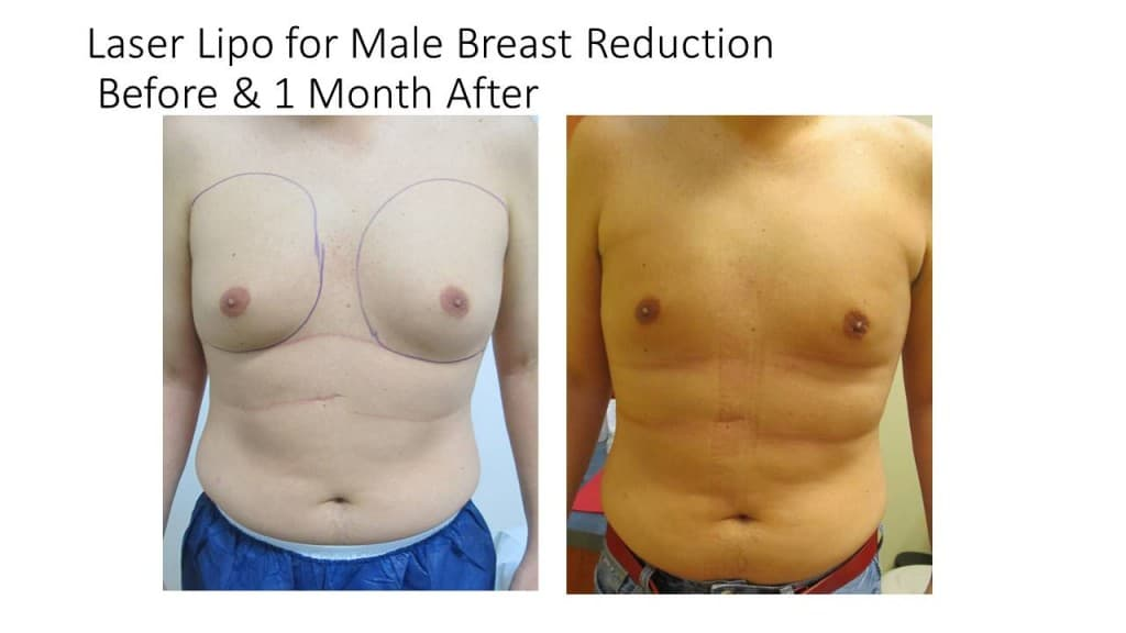 Male Breast Reduction Liposuction Before and After 9