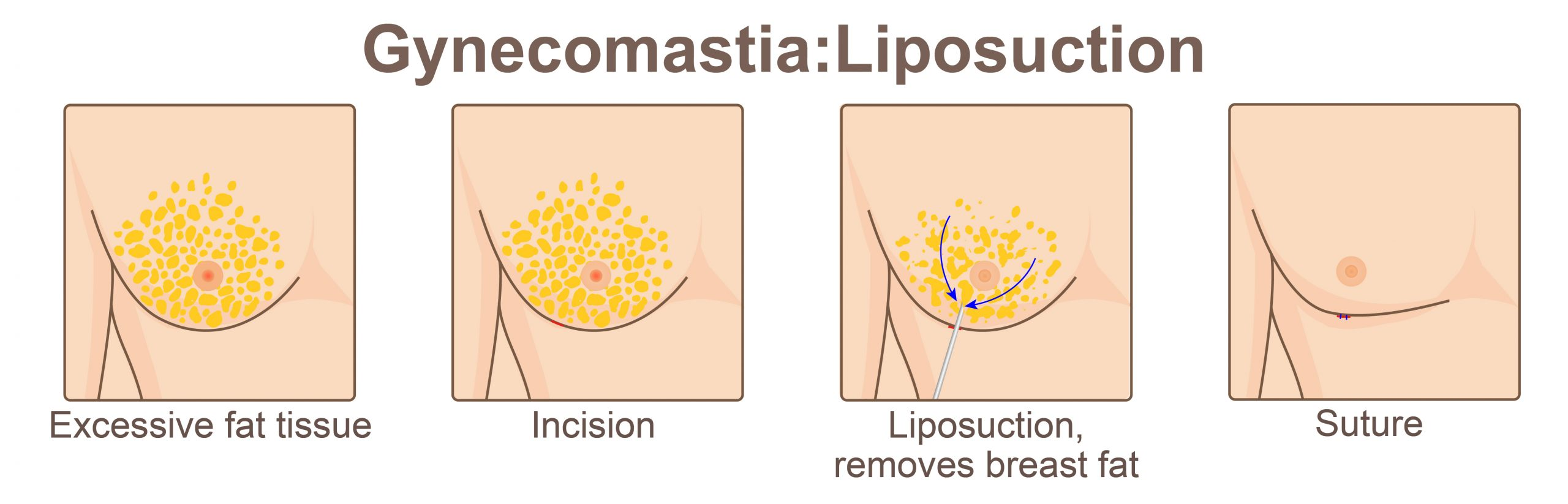 Male Breast Reduction Liposuction
