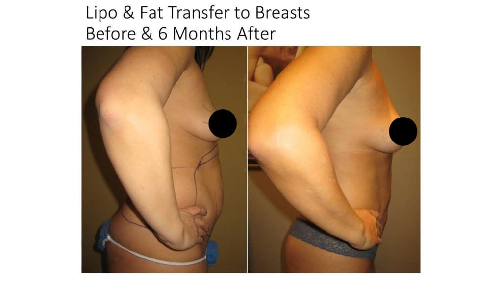 Natural Breast Augmentation Liposuction Before and After 3