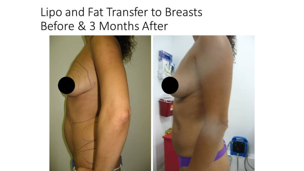 Natural Breast Augmentation Liposuction Before and After 4