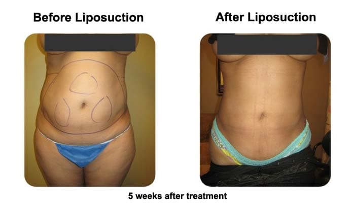 Smart Liposuction Abdomen Before and After Photo 2